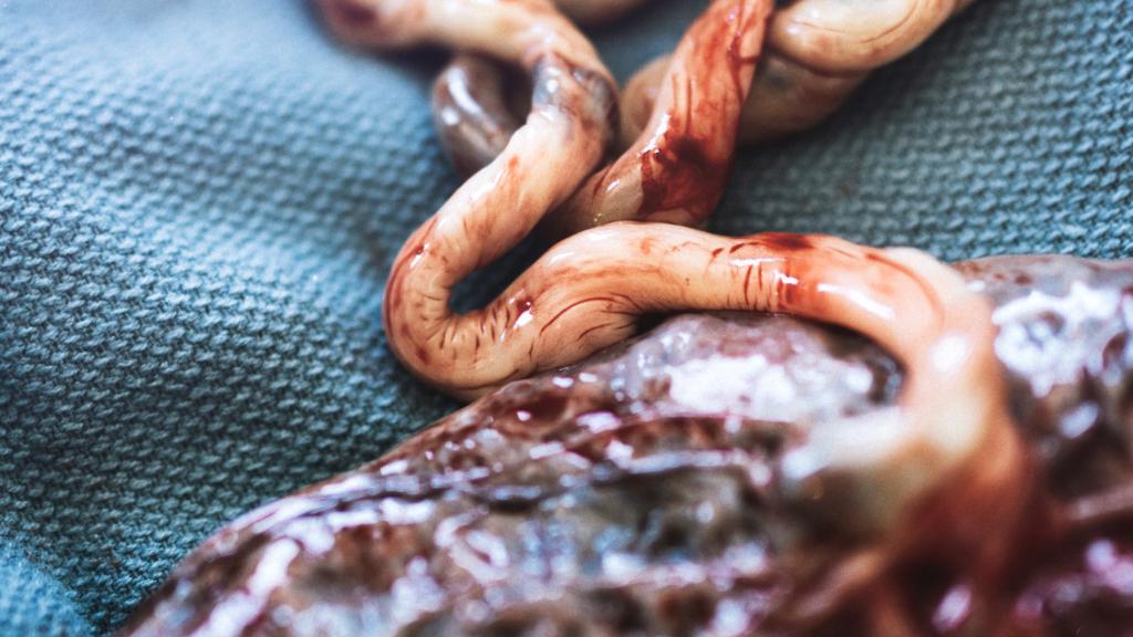 placenta navelstreng uitkloppen